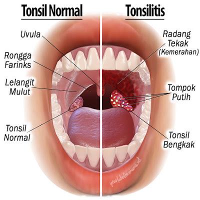 bengkak tonsil dan rawatan