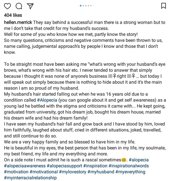 Ugandan Woman Responds To Criticisms About Her British Husband Who Suffers From Alopecia