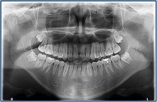 Panoramik diş filmi