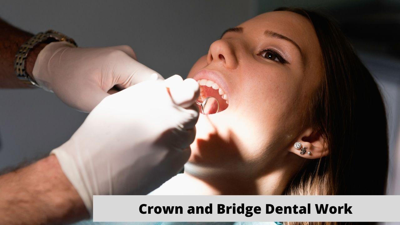 Crown and Bridge Dental Work