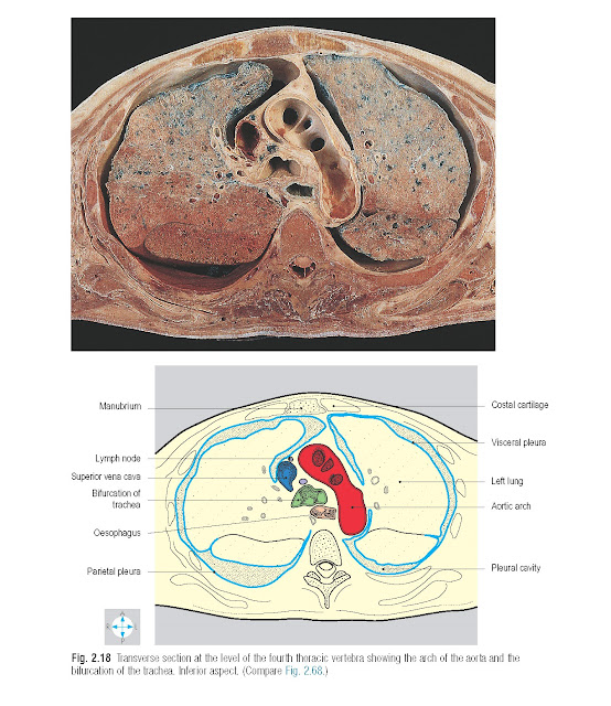 Transverse section at the level of the fourth thoracic vertebra showing the arch of the aorta and the bifurcation of the trachea. Inferior aspect.