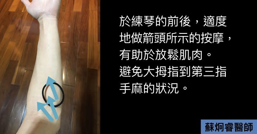 蘇炯睿醫師: 音樂家,手麻怎麼辦?