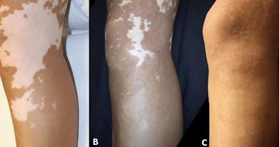 Vitiligo en la rodilla y pierna-Trasplante de Melanocitos-Tratamiento para el vitiligo