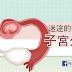 迷途的受精卵 – 子宮外孕(懶人包)