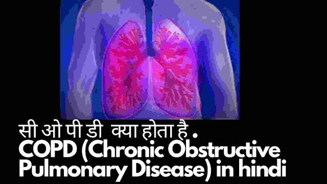 सीओपीडी क्या है और इलाज - COPD treatment in hindi