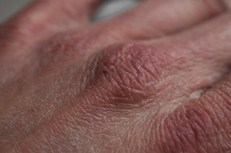 kulit kering