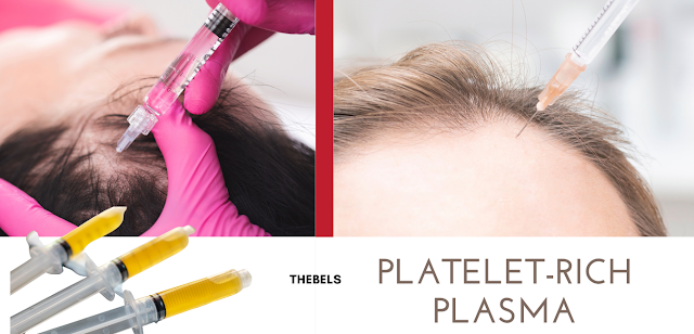 PRP Hair: Treat all your hair loss problems