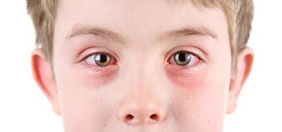 Begini Cara Obati Mata Akibat Tertembak Cahaya Las. No 5 Paling Ampuh