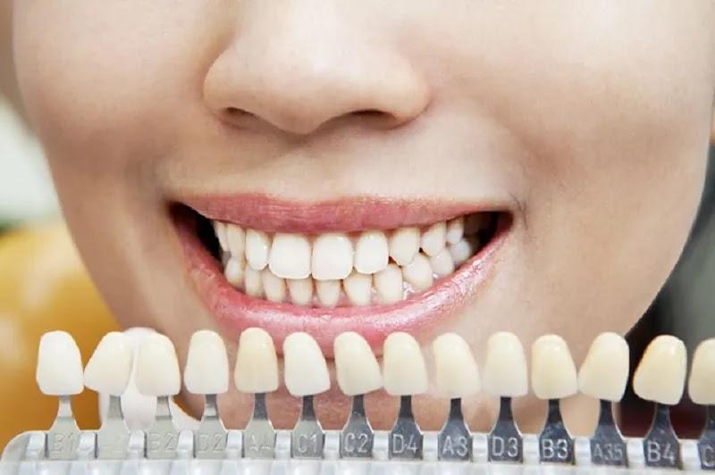 تبييض الأسنان في المنزل - كيف تبيض أسنانك بشكل طبيعي؟