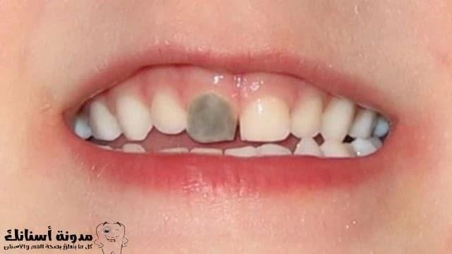 كيف نمنع تسوس الاسنان عند الرضع؟