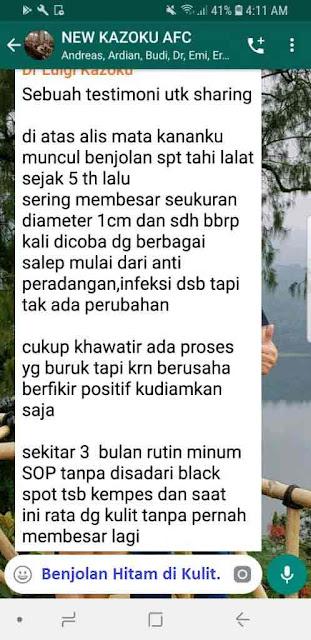 Jual SOP Subarashi Kandungan - Obat Tradisional Kencing Manis, Jual di Maluku Utara. Utsukushii Review Female Daily.