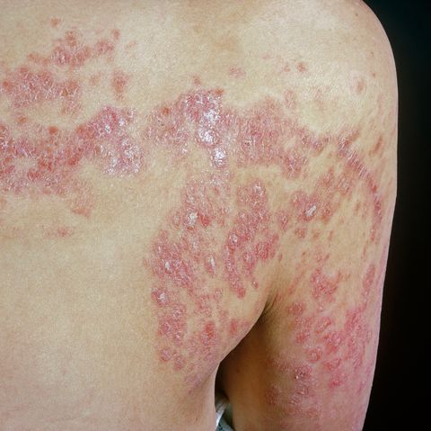 These are the most prevalent forms and are termed 'psoriasis vulgaris' or 'plaque psoriasis'
