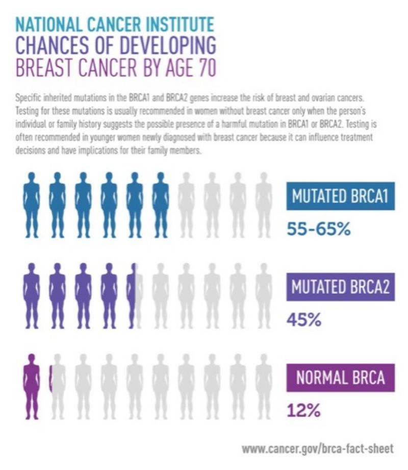 BRCA breast cancer