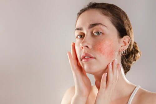 kulit-reaktif-gejala-penyebab-dan-pengobatannya