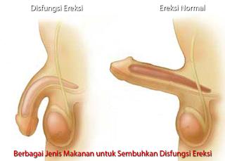 titik pijat agar ereksi kuat tahan lama titik pijat dan refleksi