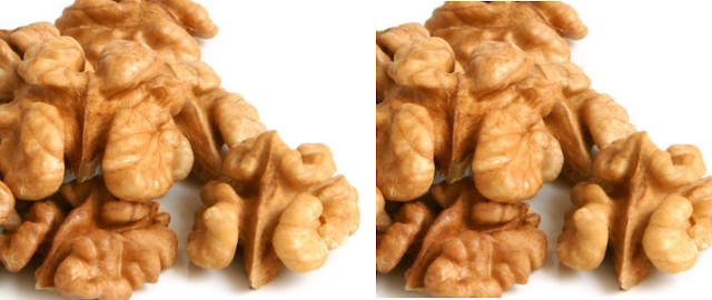 Walnuts (Akhrot - Dry Fruits) - Birth Defects