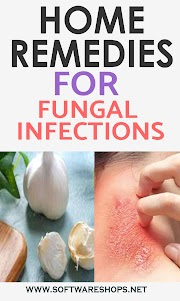 7 Home Remedies For Fungal Infections