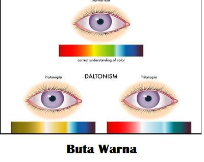 cara mengatasi buta warna