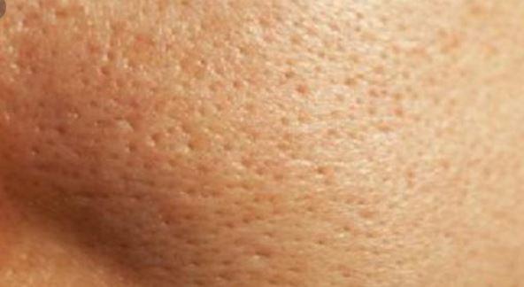 علاج الحبوب السوداء في الوجه للرجال