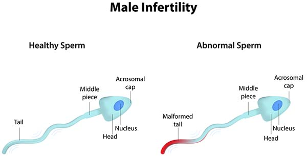 Balding and male infertility