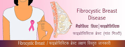 फाइब्रोसिस्टिक ब्रेस्ट Fibrocystic Breast Disease in Hindi