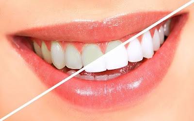 تقنيات تبيض الأسنان