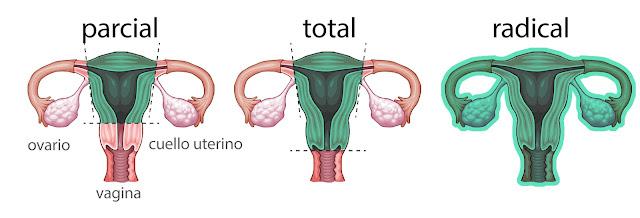 Tipos de histerectomia