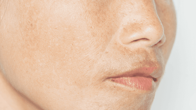At Home Remedies To Treat Hyperpigmentation By Barbies Beauty Bits