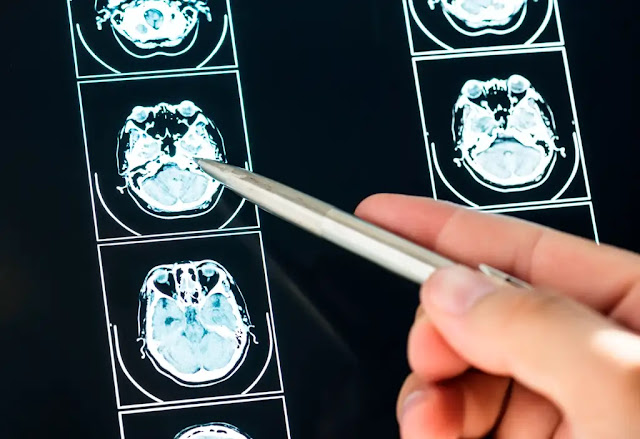 Traumatic Brain Injury Treatment - TBI Guidelines