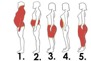 5 أنواع من دهون الجسم وكيف تتخلص منها