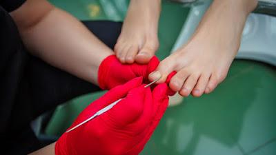 7 Cara Mencegah Infeksi Jamur Kuku