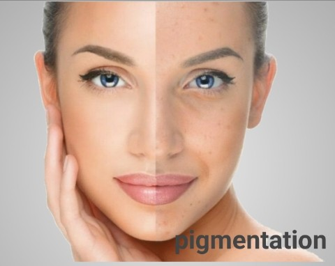 Ayurvedic treatment for pigmentation on face.