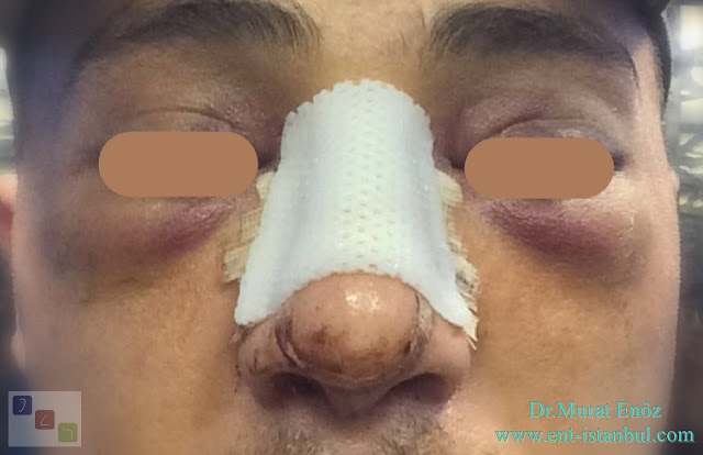 Bruising around the eyes after the rhinoplasty operation,  swelling after nose aesthetic surgery
