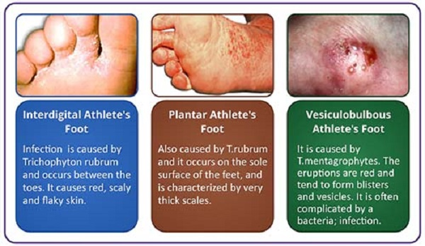 Athlete's Foot Its Symptoms And Prevention  Healthpedia4all. Atom Logo. Slate Blue Lettering. School Hallway Banners. Lil Stickers. Japanese Modern Murals. Fuschia Banners. Butterfly Wing Murals. Woodcut Banners