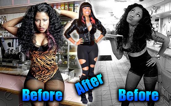 How To Be Stunning Nicki Minaj S Nose And Butt