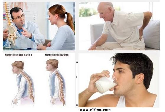 Làm sao đẩy lùi bệnh loãng xương ở mọi tuổi www.c10mt.com