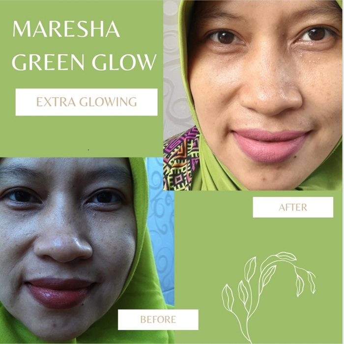 before after maresha