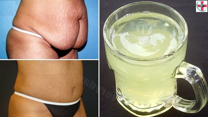 Natural home remedies to help you get rid of belly fat and achieve a flat tummy