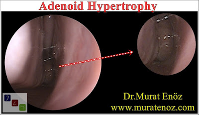 Adenoid hypertrophy - Causes of adenoid hypertrophy - Treatment of adenoid hypertrophy - Symptoms of adenoid hypertrophy - Adenoidectomy operation video - Diagnosis of adenoid hypertrophy - Adenoidectomy in İstanbul - Adenoidectomy in Turkey