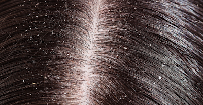 DANDRUFF, HAIR FALL, HAIR LOSS