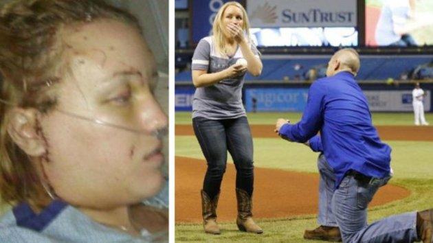 Ditusuk 32 Kali oleh Pacarnya, 3 Tahun Kemudian Melissa Malah Dilamar Orang Tak Terduga Ini!