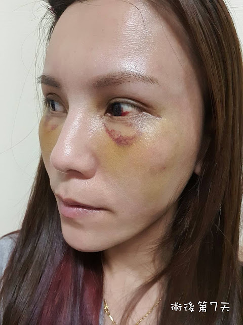 眼袋手術後第7天
