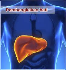 Obat Liver Bengkak, 100% Herbal Mengobati Liver Membengkak Untuk Semua Kalangan Usia