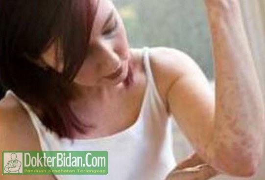 Biduran - Penyebab, Gejala, Cara Pengobatan dan Komplikasinya Untuk Kesehatan