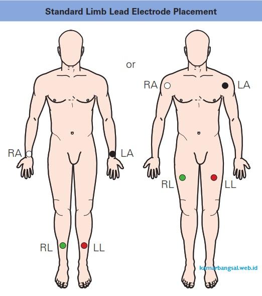 Standard Limb Lead Electrode Placement