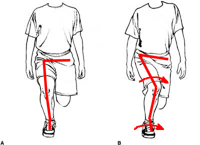 跑者膝 髕股痛 髕骨股骨疼痛症候群