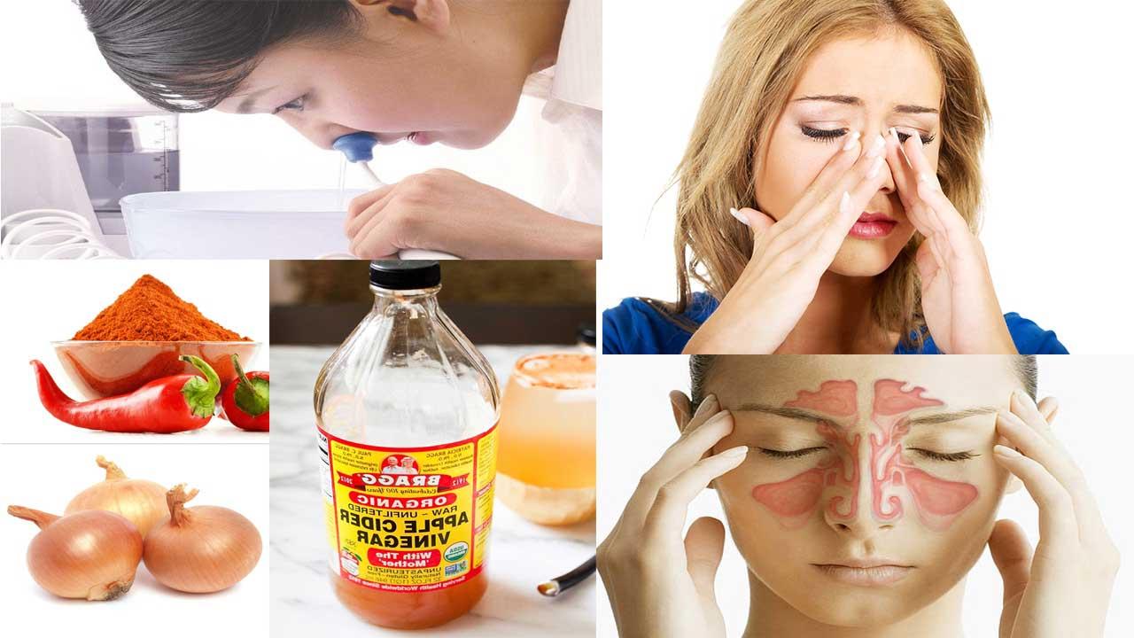 Sinusite aiguë: Remèdes maison