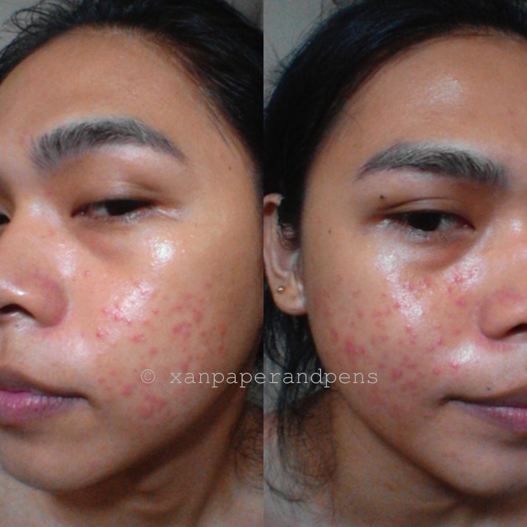 xanPaper and Pens: What is Acne Purging?