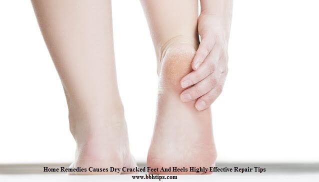 Home Remedies Causes Dry Cracked Feet Heels Highly Effective Repair Tips