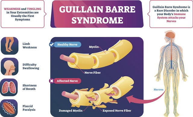 What is causign Guillain-Barré syndrome?